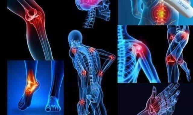 Photo of الفيبروميالجيا (ألم العضلات الليفى)