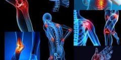 الفيبروميالجيا (ألم العضلات الليفى)