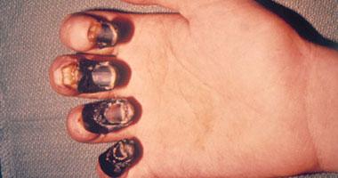 Photo of تفشي وباء كل مائة عام  والسر في رقم 20 !
