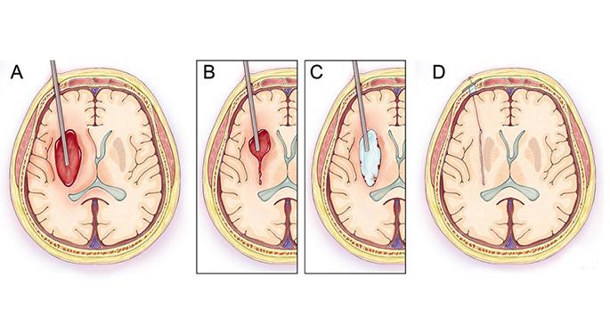 جراحة قسطرة السكتة الدماغية